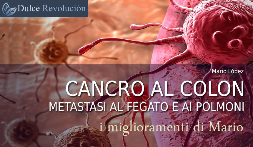 metastasi ai polmoni aspettative di vita